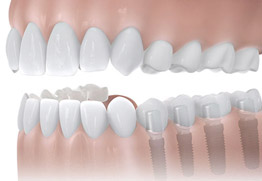 Verkürzte Zahnreihe